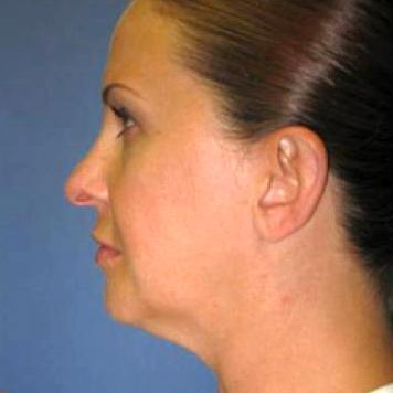Before and After Facial Liposuction Case #24808