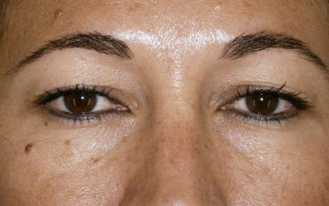 Before and After Eyelid Surgery (Blepharoplasty) Case #25184
