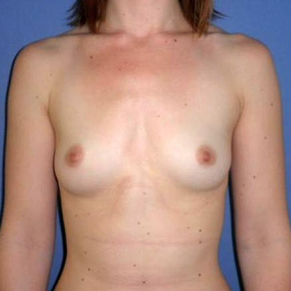 Before and After Breast Augmentation Case #27430