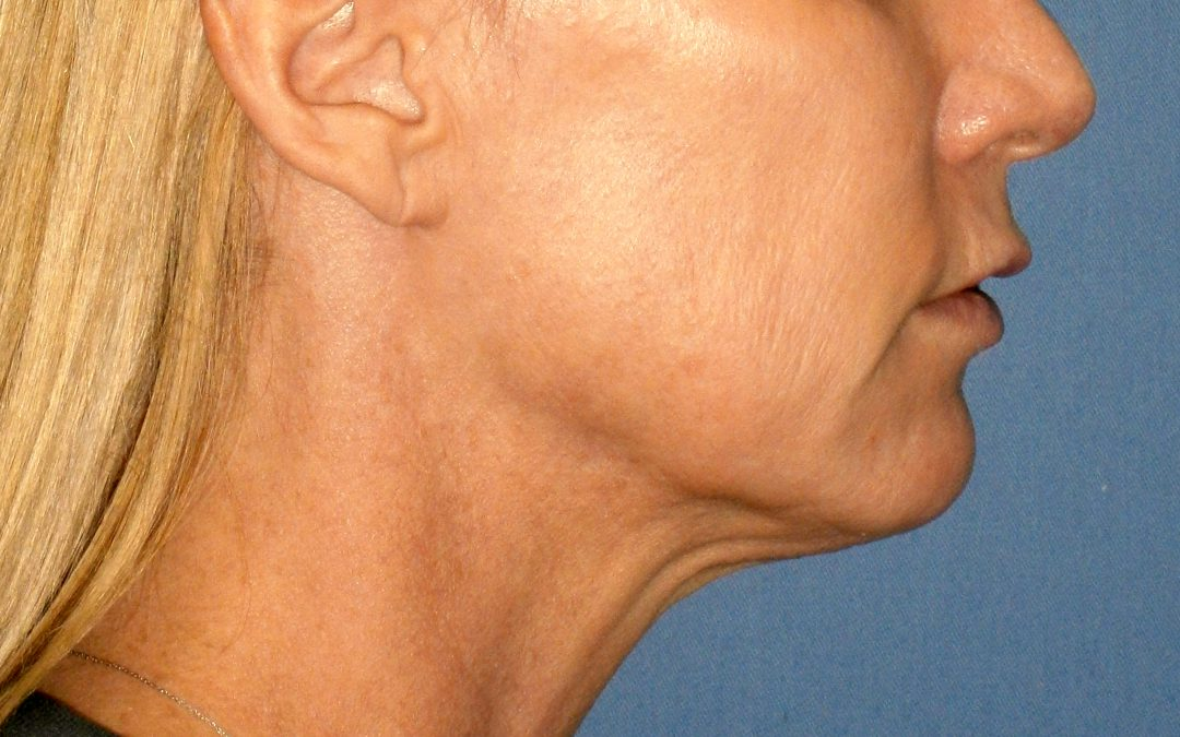 Before and After Neck Lift Case #28225