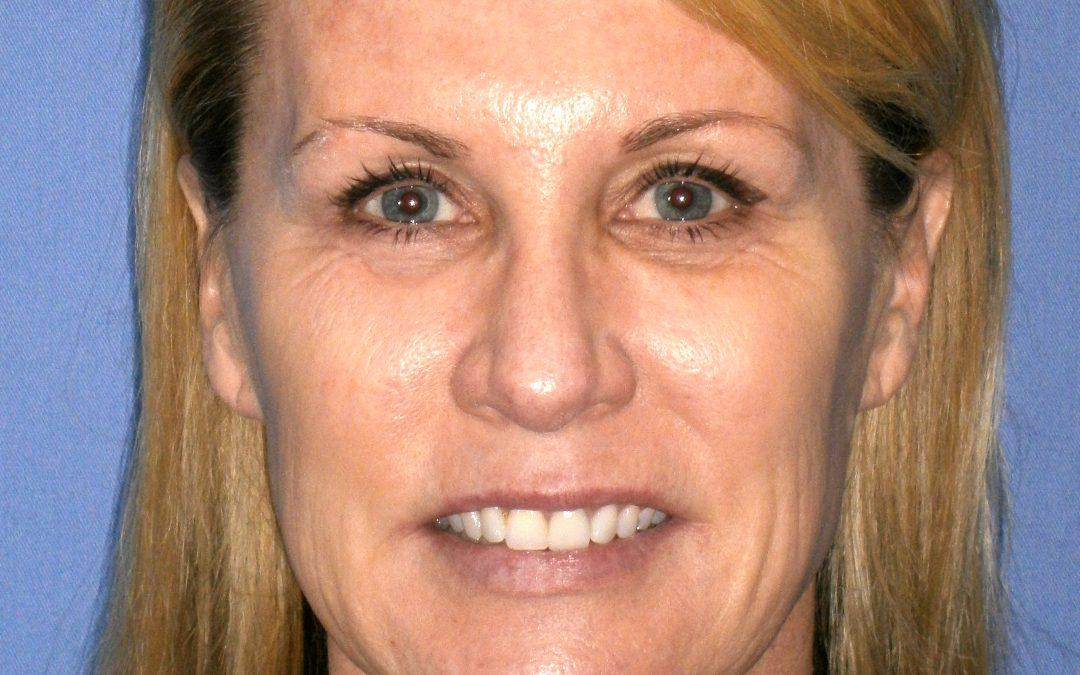 Before and After Fat Injections & Facelift Case #28225