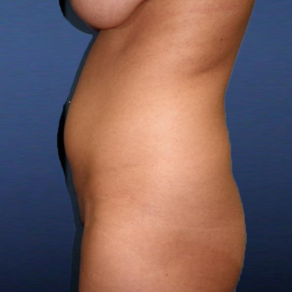 Before and After Liposuction Case #28353