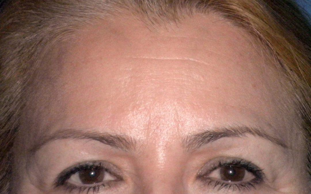 Before and After Brow and Forehead Lift Case #28587