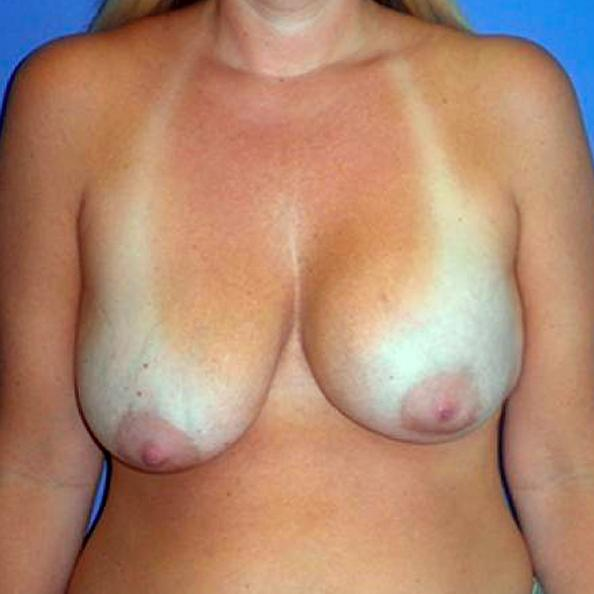 Before and After Breast Lift Case #28843
