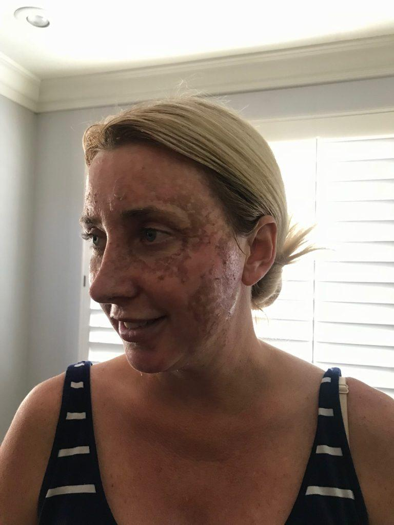 Peeling skin after a C02 Laser at CosmetiCare