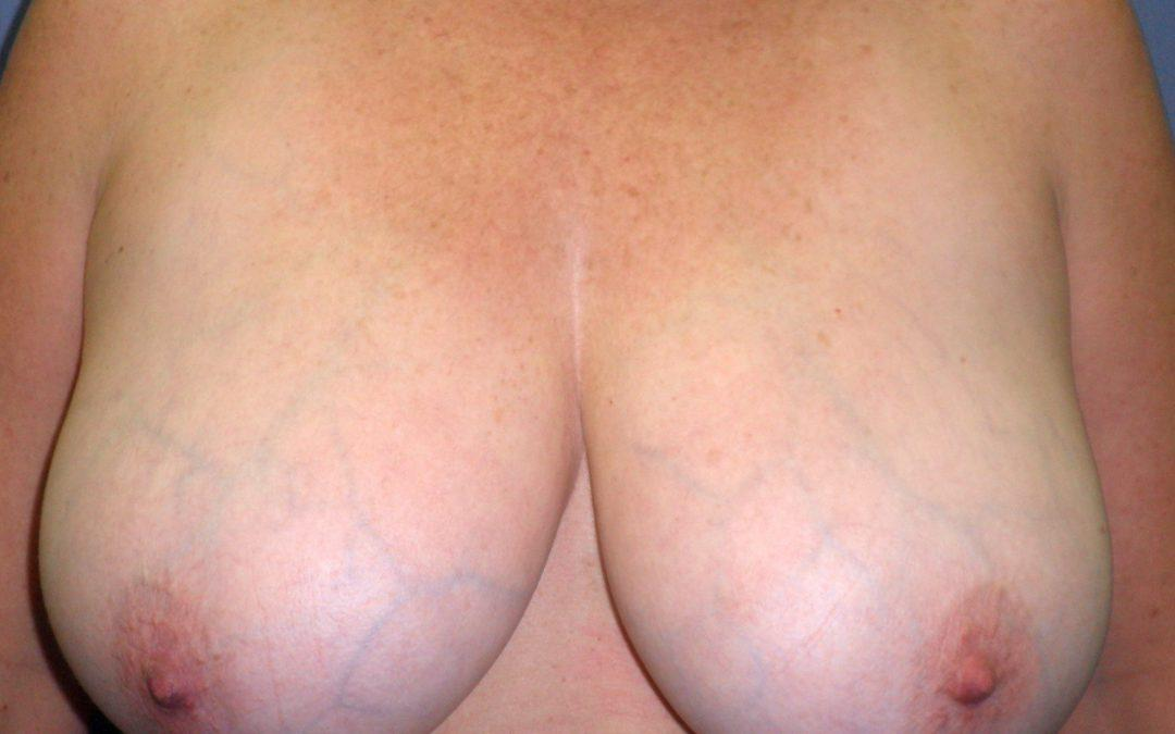 Before and After Breast Reduction Case #30413