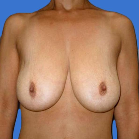 Before and After Breast Lift Case #304603