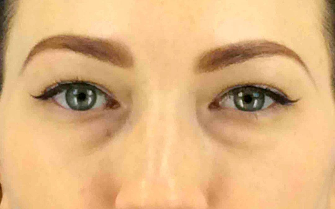 Before and After Eyelid Surgery (Blepharoplasty) Case #30493