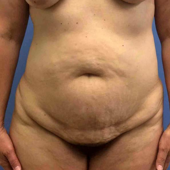 Before and After Abdominoplasty (Tummy Tuck) Case #30614