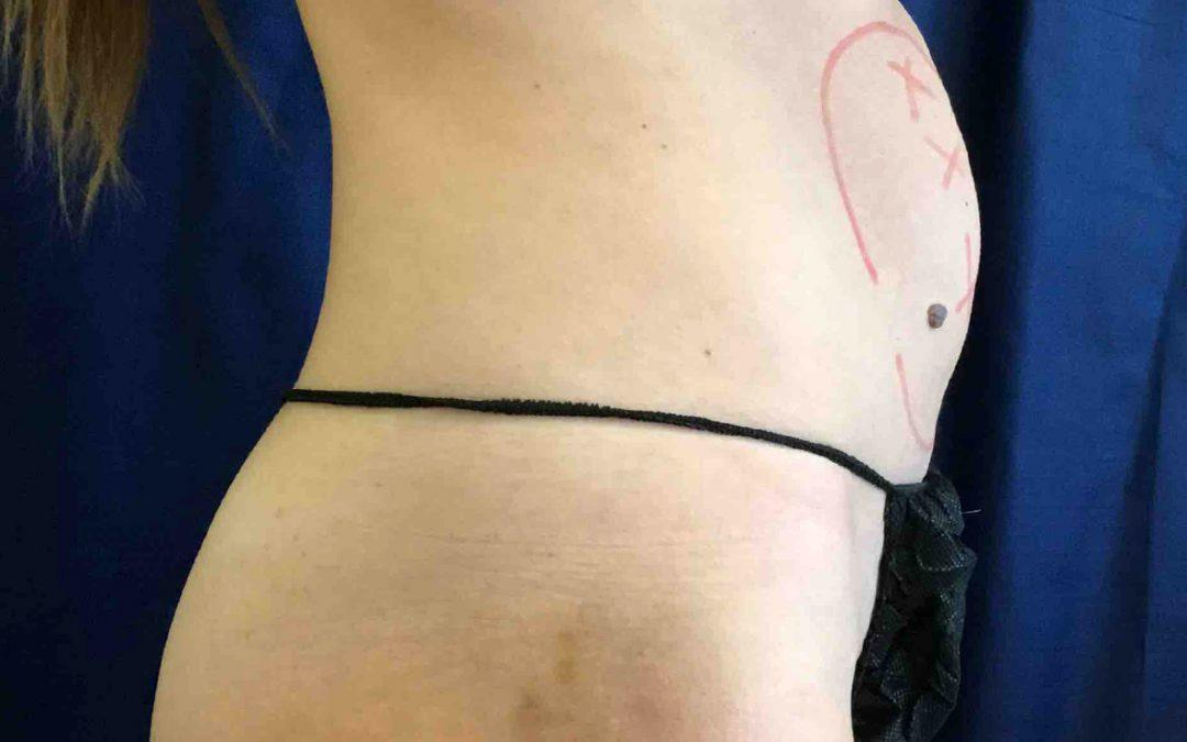 Before and After Coolsculpting Case #31088