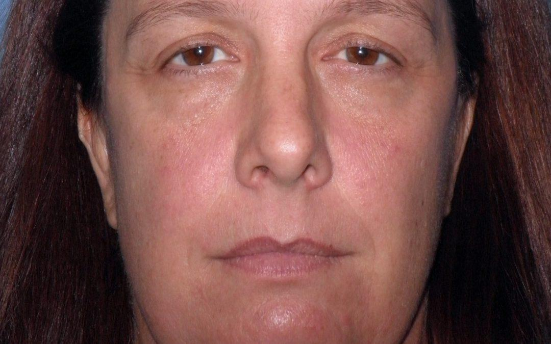 Before and After Brow and Forehead Lift Case #32143