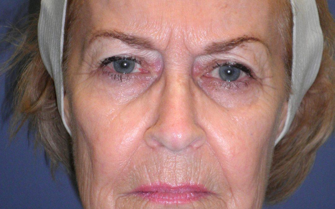 Before and After Brow and Forehead Lift Case #32631