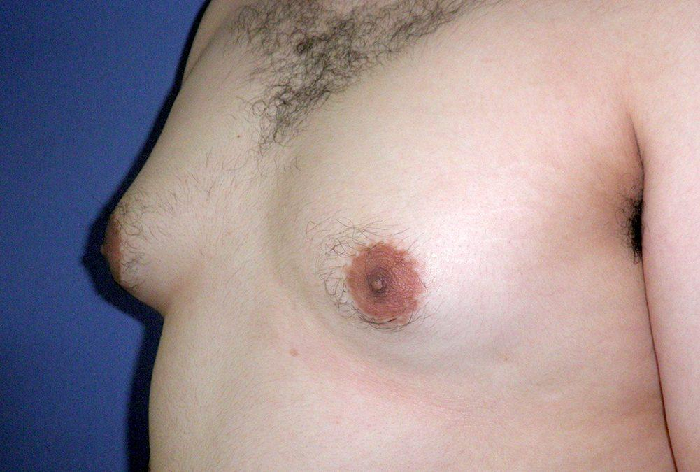 Before and After Gynecomastia Case #33241