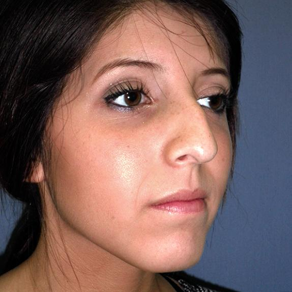 Before and After Rhinoplasty (Nose Surgery) Case #33589