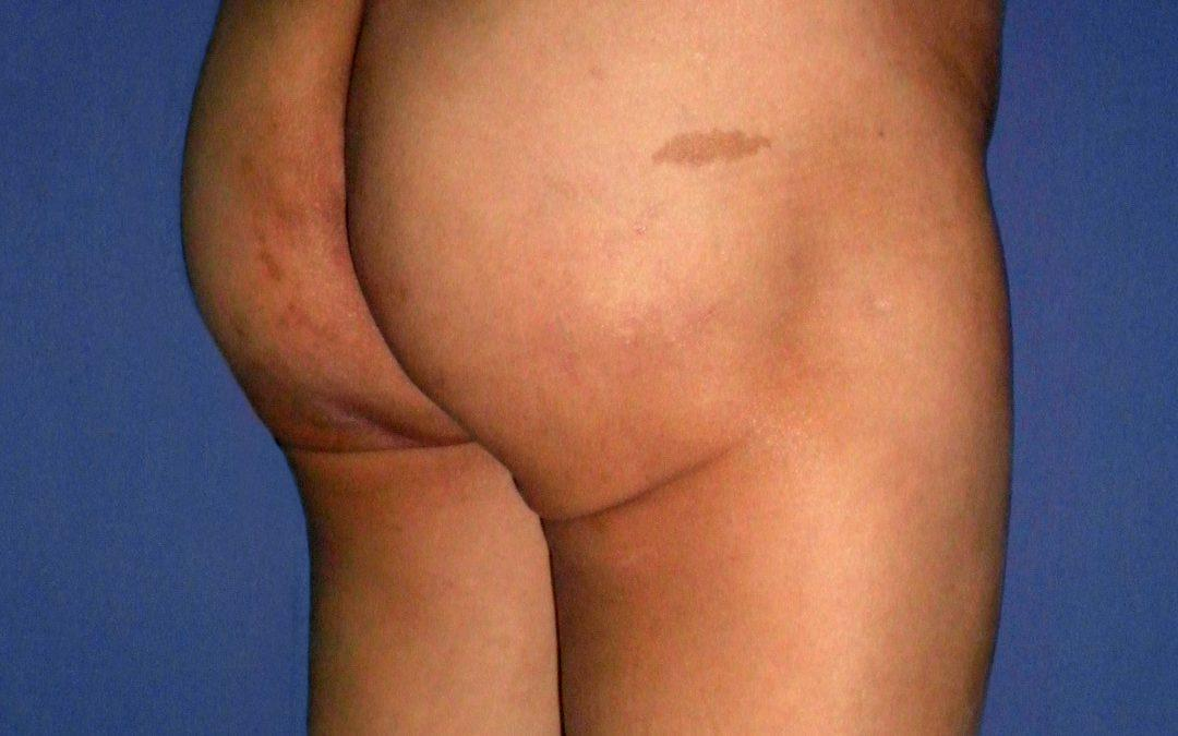 Before and After Buttocks Enlargement (Implants) Case #34401
