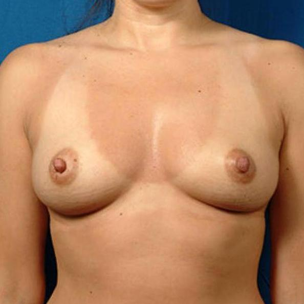 Before and After Breast Augmentation Case #345629