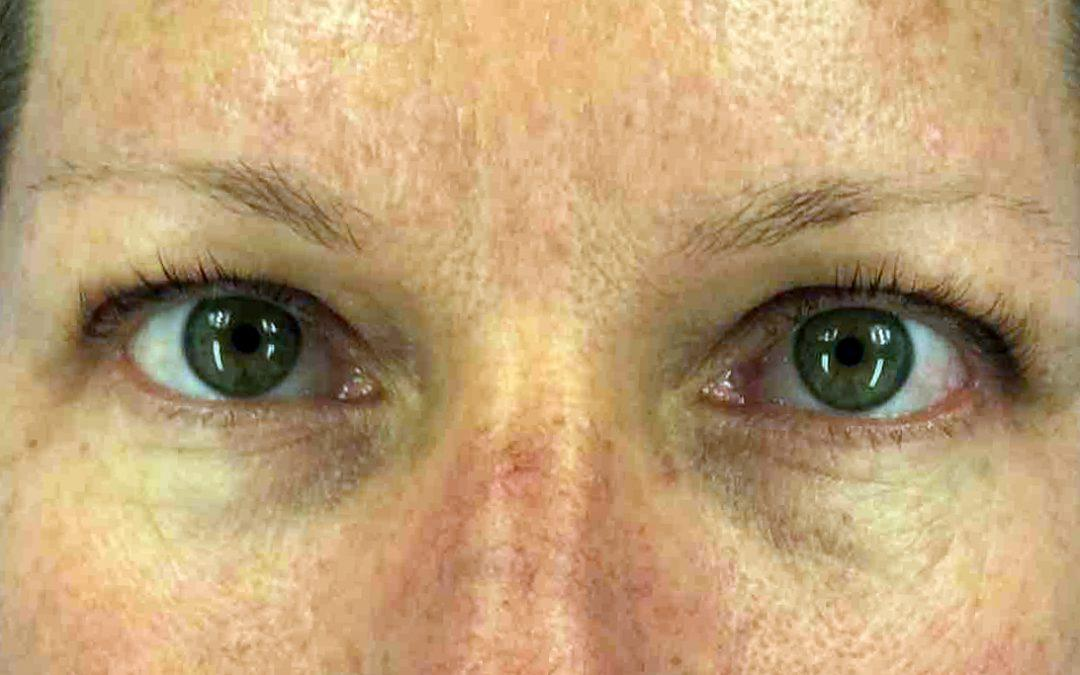 Before and After Eyelid Surgery (Blepharoplasty) Case #35130