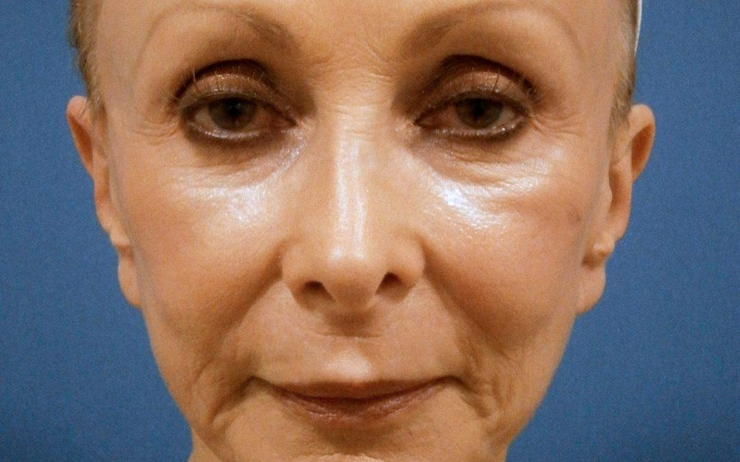 Before and After Facelift Case #42845