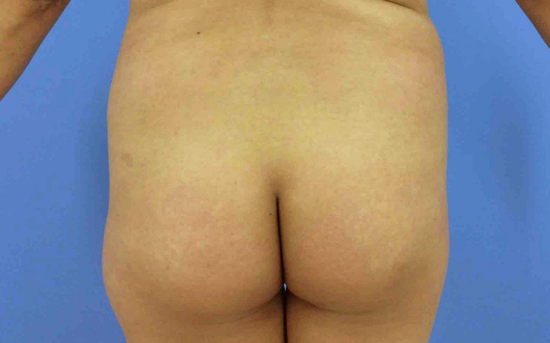 Before and After Brazilian Butt Lift Case #47108