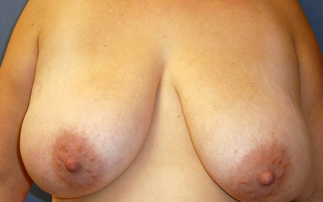 Before and After Breast Reduction Case #48626