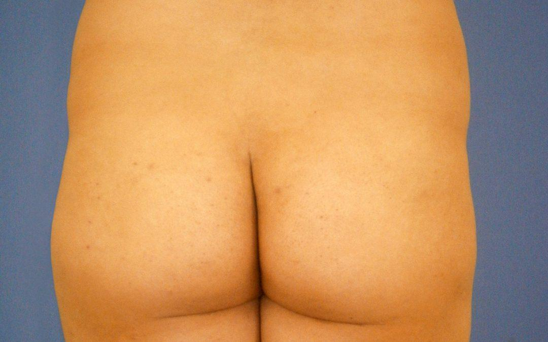 Before and After Brazilian Butt Lift Case #50422