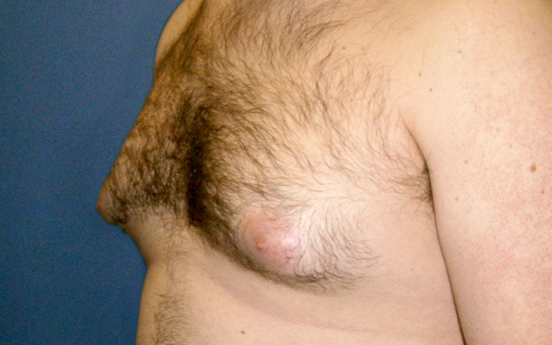 Before and After Gynecomastia Case #50545