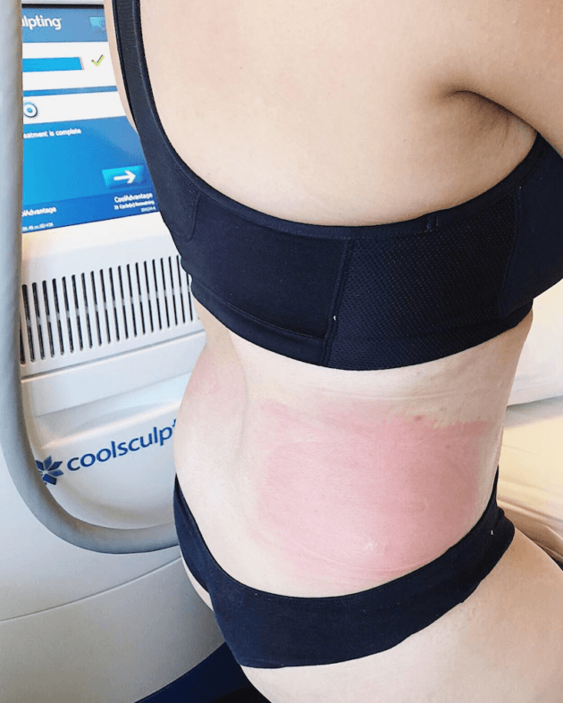 Redness After Coolsculpting