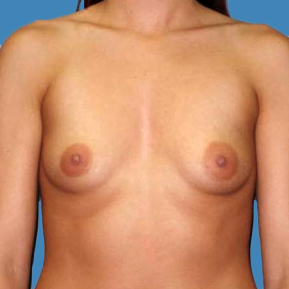Before and After Breast Augmentation Case #70903