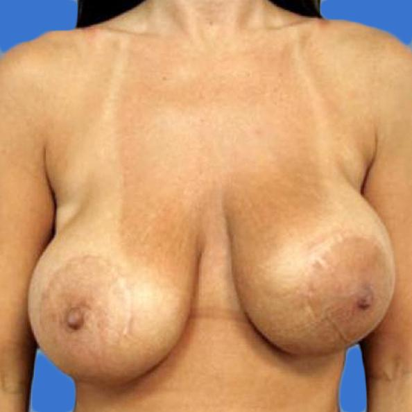 Before and After Breast Lift Case #820501