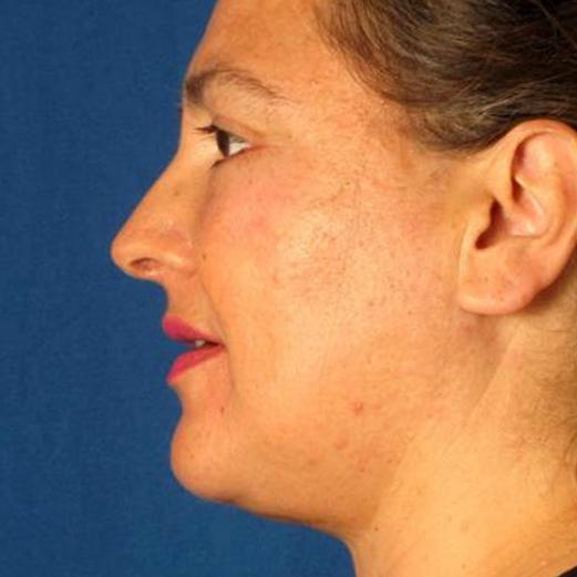 Before and After Facial Liposuction #872192