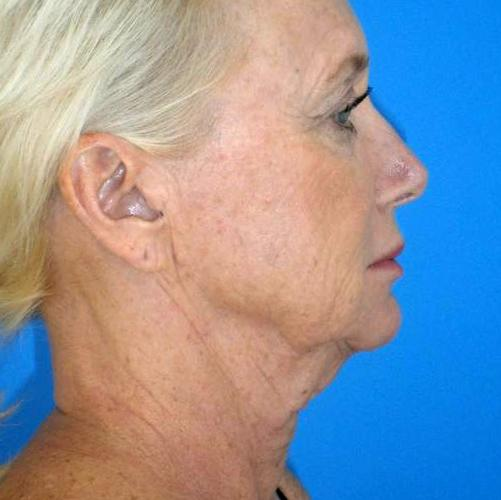 Before And After Neck Lift Case #9087564