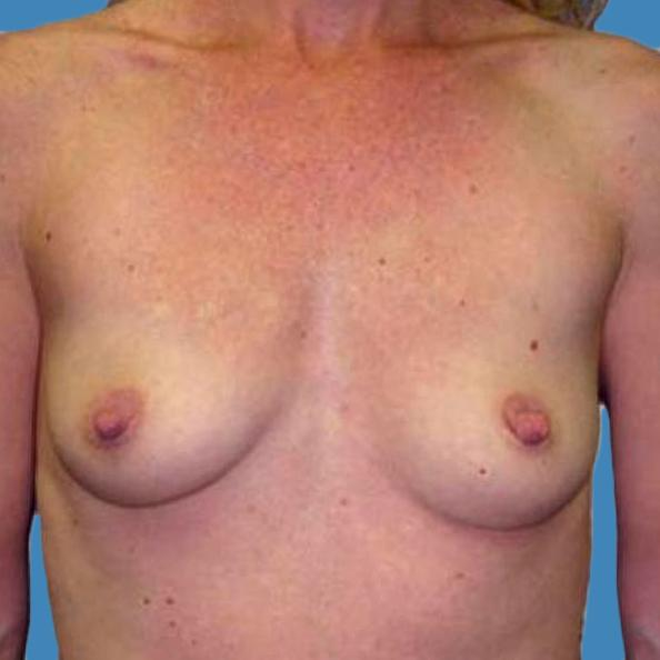Before and After Breast Augmentation Case #9304