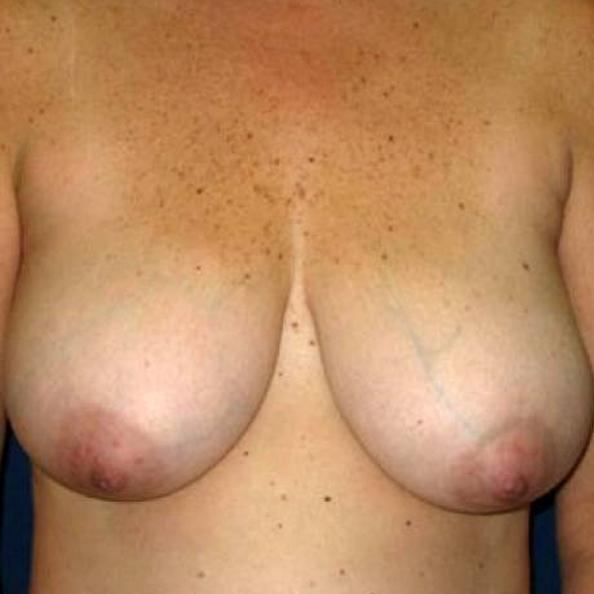 Before and After Breast Reduction Case #986001