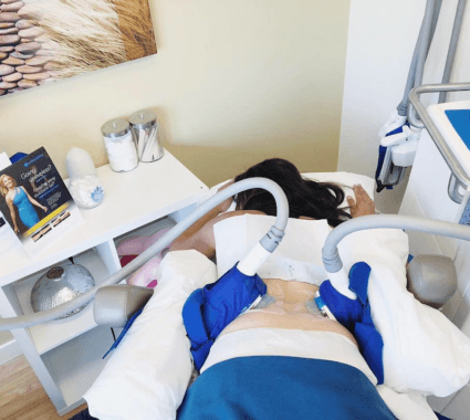 CoolSculpting Before and After: Does it Work?