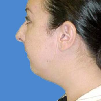 Before and After Chin & Cheek Implants Case 001