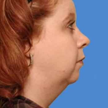 Before and After Chin & Cheek Implants Case #003