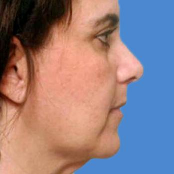 Before and After Chin & Cheek Implants Case #004