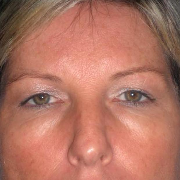 Before and After Eyelid Surgery (Blepharoplasty) Case #26785