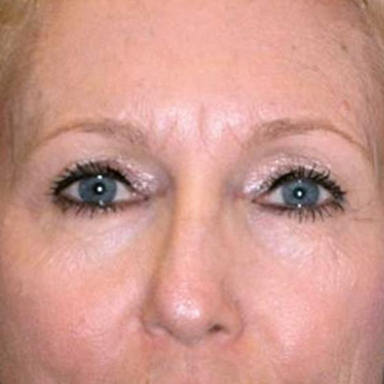 Before and After Eyelid Surgery (Blepharoplasty) Case #1000936