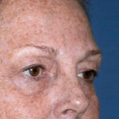 Before and After Eyelid Surgery (Blepharoplasty) Case #1002832