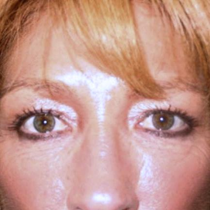 Before and After Eyelid Surgery (Blepharoplasty) Case #972001