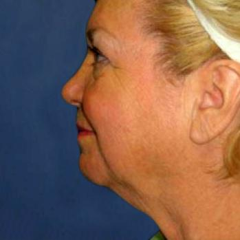Before and After Chin & Cheek Implants & Neck Lift Case #002