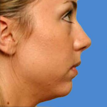 Before and After Chin & Cheek Implants Case #005