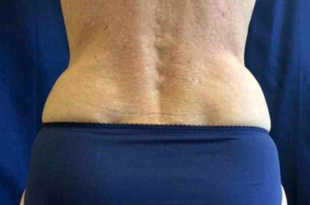 Before and After Coolsculpting Case #001