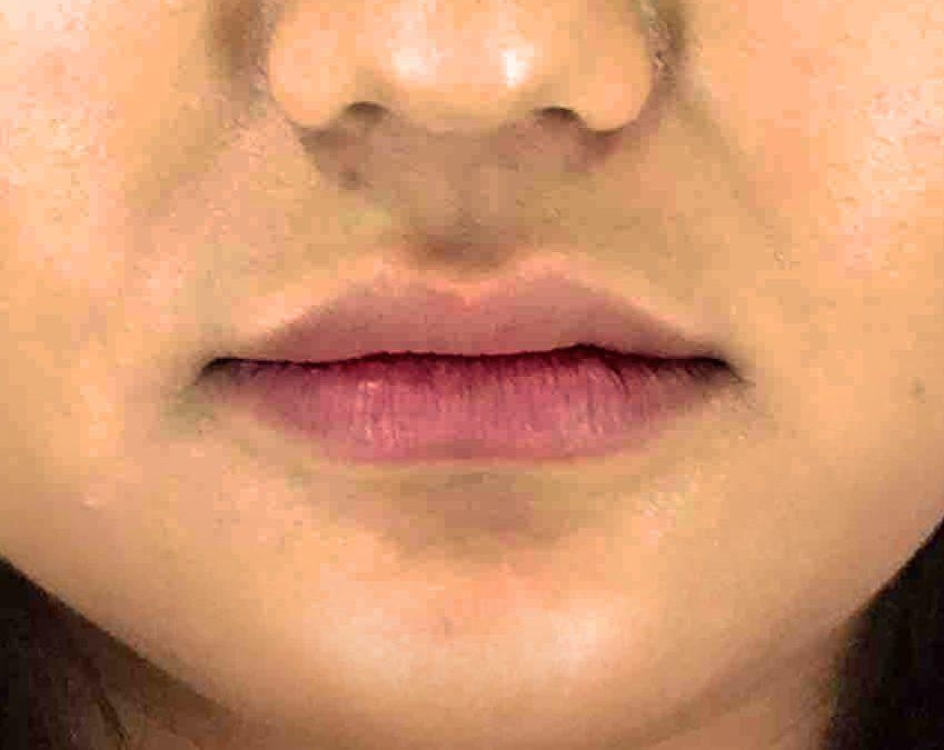 Before and After Juvederm Case #001