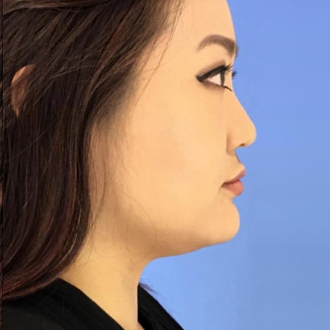Before and After 1 Treatment of Kybella Case #100