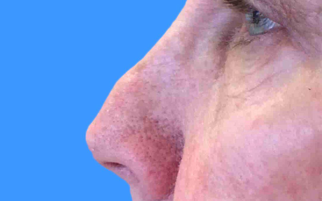Before and After Juvederm Case #1020768