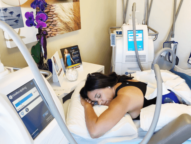 CoolSculpting: What to Expect