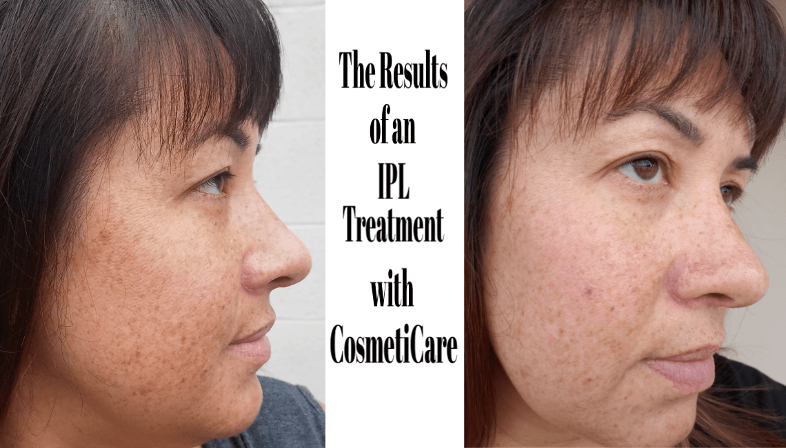 The Results of an IPL Treatment at CosmetiCare