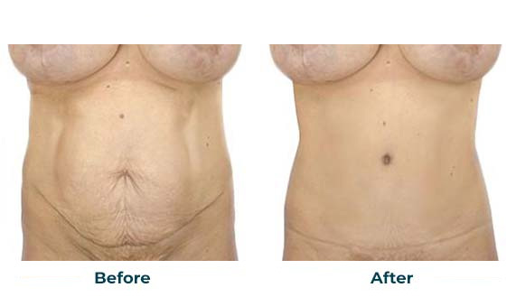 Tummy-Tuck-Cosmeticare-Before-After